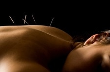 Trigger Point Dry Needling - Seacoast Sports Injuries